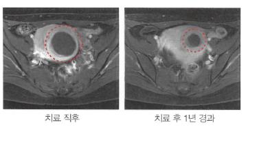 자궁근종%20하이푸%20리플릿1.png